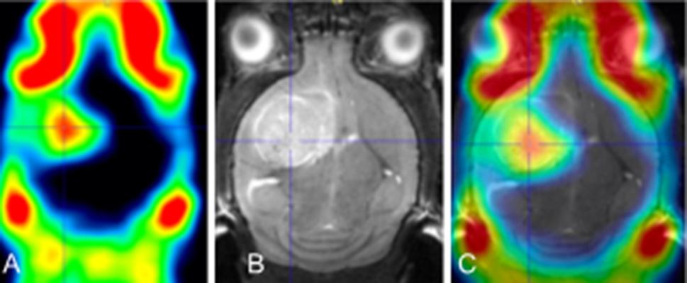 PET images of glioblastom